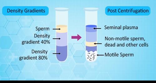 Semen sample preparation