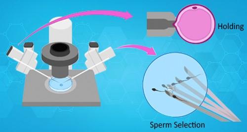 Sperm selection