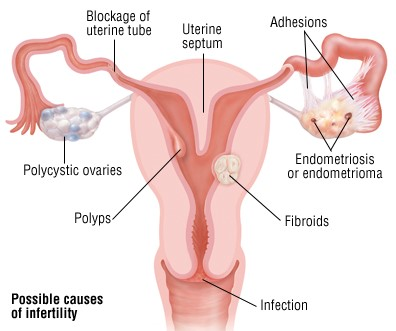 Causes of Infertility