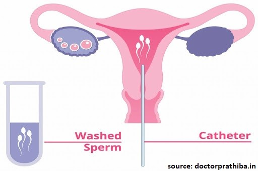 What is IUI