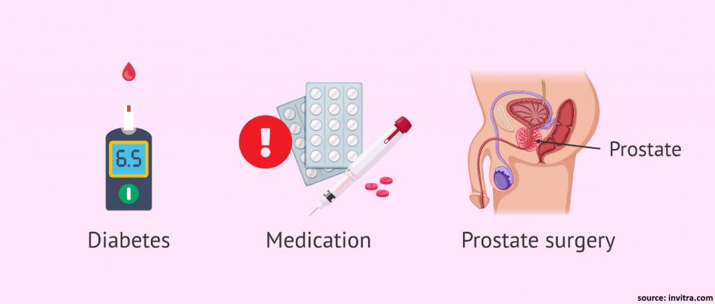 What causes retrograde ejaculation
